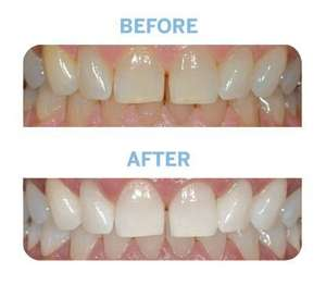 28 Crystal Smile PROFESSIONAL HIGH GRADE Teeth Whitening Strips was £19.99 now £4.49 delivered with Prime Sold by Crystal Smile and Fulfilled by Amazon.