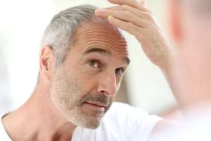 20% Off Male Pattern Baldness Treatments Discount Code @ Pharmacy First