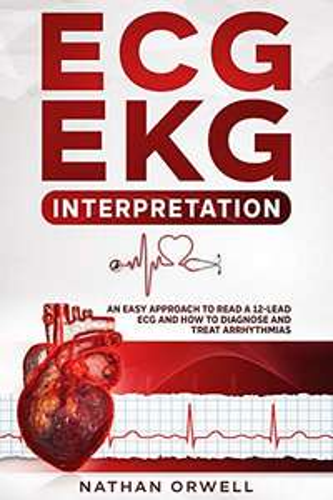 ECG/EKG Interpretation: An Easy Approach to Read a 12-Lead ECG and How to Diagnose and Treat Arrhythmias Free Kindle Edition Ebook @ Amazon